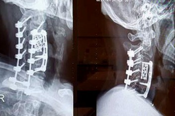 x-ray-1